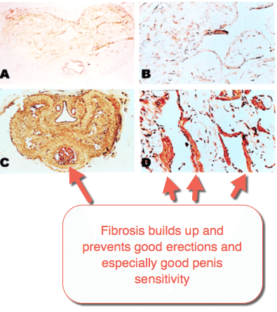 Fibrosis builds up and prevents good erections and especially good penis sensitivity