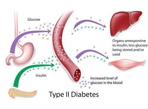 Беременность при сахарной диабете 2 типа