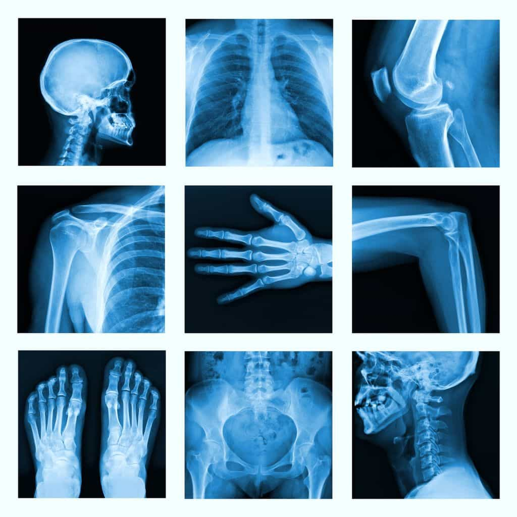 X-rays really are harmful