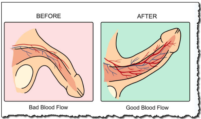Bad Blood flow and Good Blood flow