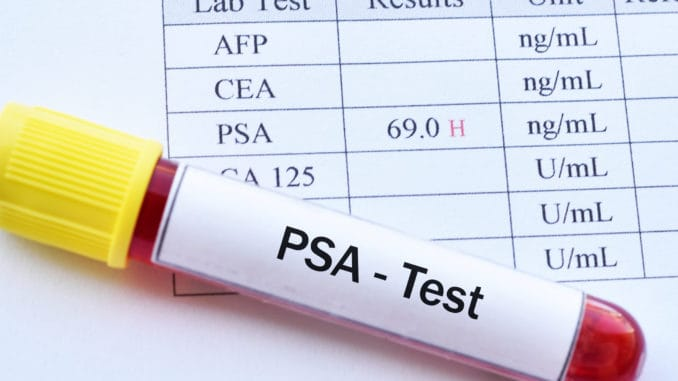 Read This Before Getting a PSA Test (Very Important)