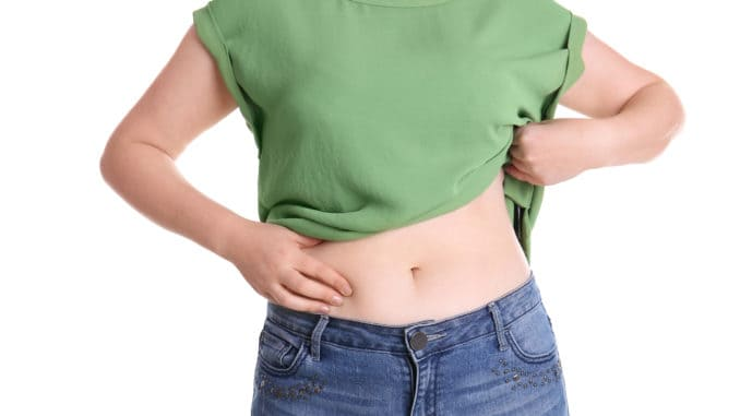 Overweight woman touching belly fat before weight loss