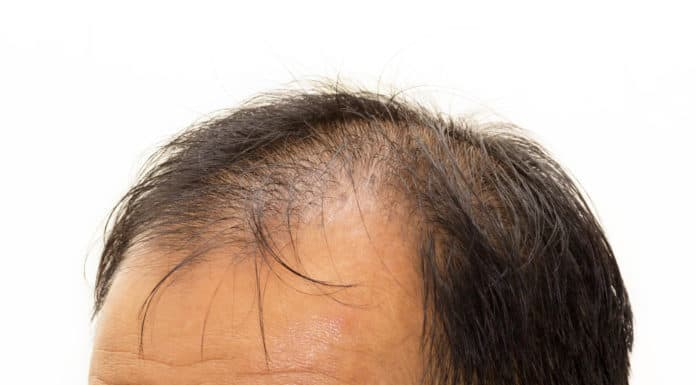 Vitamin D and hair growth: More important than you thought