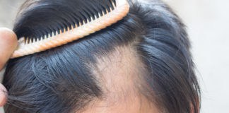 Insights On Hair Loss: Is DHT a Red Herring?