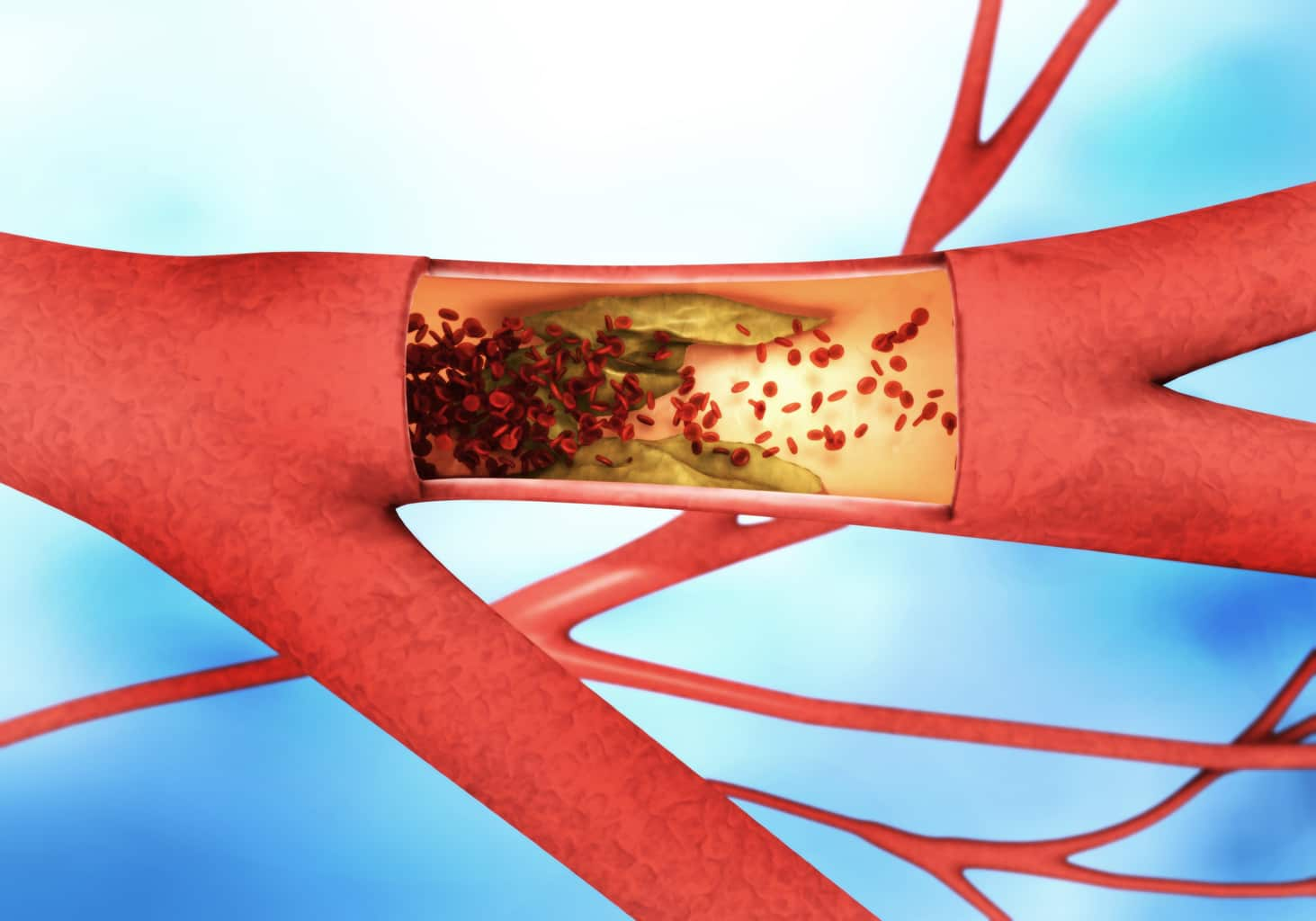 The link between hardening of the arteries and erectile dysfunction