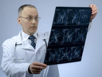 Experienced cardiologist checking CT scan of blood vessels, looking surprised, stock photo