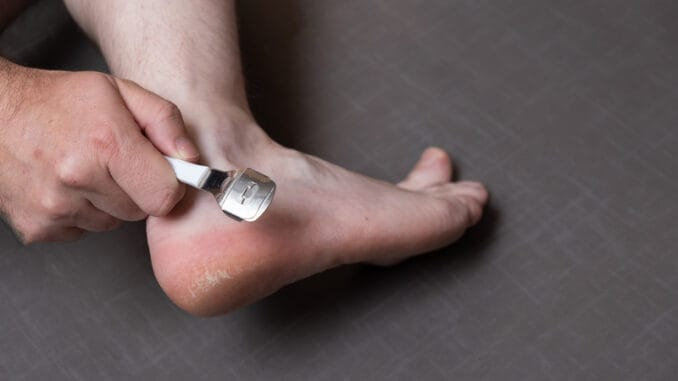 Man removing corn, callus from his feet using a razor file, masculine skin care, skin disease, fungal infection, skin treatment and healthcare, close up, caucasian, not recognizable