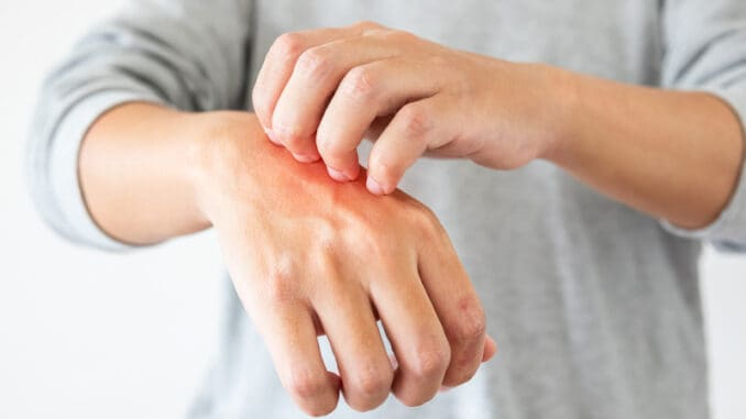 Young asian man itching and scratching on hand