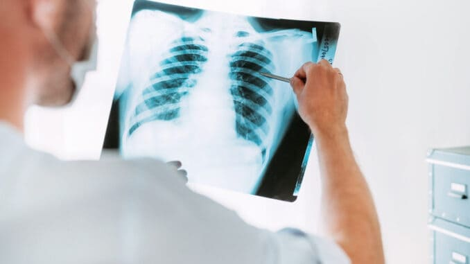 Male doctor examining the patient chest x-ray film lungs scan