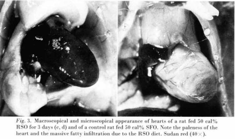Fig. 3. Macroscopical and microscopical appearance of hearts of a rat fed 50% cal RSO for 3 dyas (e, d) and of a control rat fed 50 cal% SFO. Note the paleness of the heart and the massive fatty infiltration due to the RSO diet.Sudan red (40x).