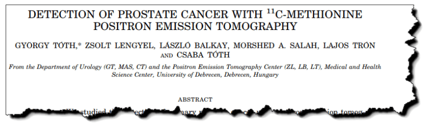 Detection of prostate cancer with 11C-methionine positron emission tomography.