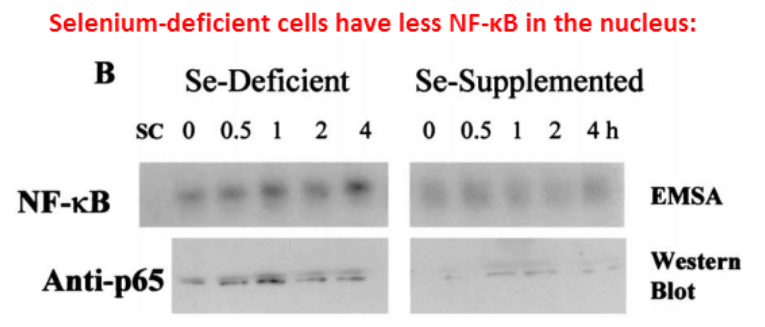 Selenium-deficient cells have less NF-KB in the nucleus